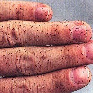 mites can they embed in skin picture 1