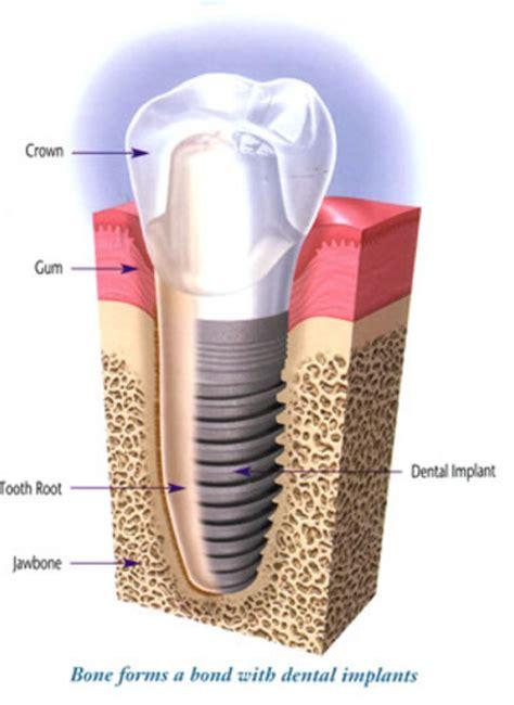 cost of teeth veneers picture 13