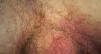 what can i fo for itchy skin after picture 14