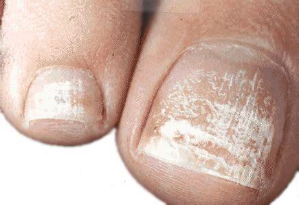 symptoms of toenail fungus picture 7