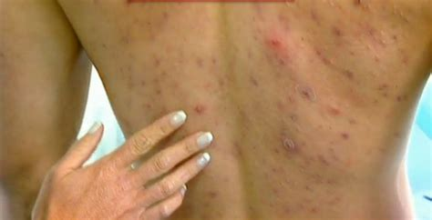 back acne treatment picture 7