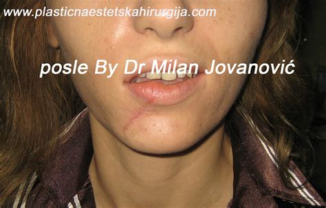 seve acne picture 6