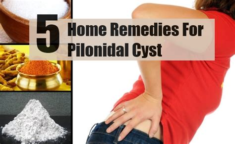 oregano oil to treat pilonidal cyst picture 14
