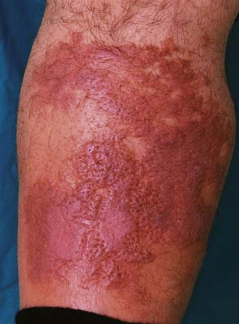 common skin infections irritations picture 14