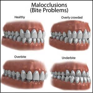 align of teeth after braces picture 6