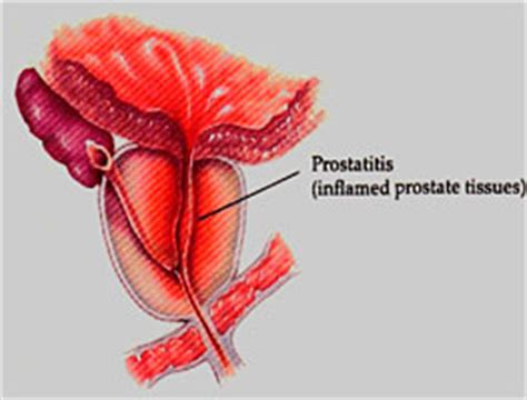 Bacterial infection of the prostate picture 11