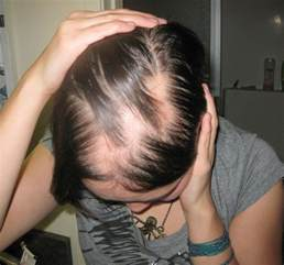 hair loss and dry mouth and thyroid picture 1