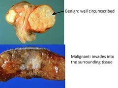abnormal growth icd 9 code picture 3