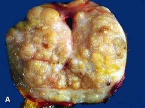 prostate nodule benign picture 11