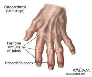treatment for early arthritis of the knee joint picture 5
