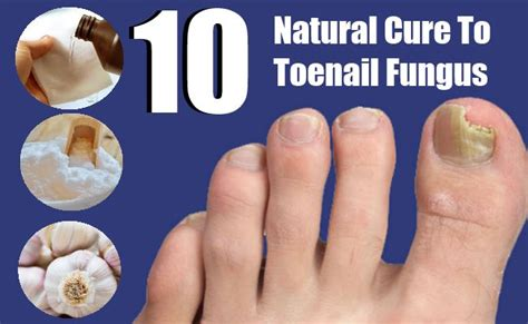 alternative cure for toenail fungus picture 3