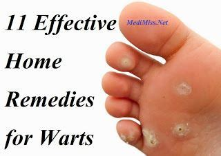 homeopathic remedies warts picture 6