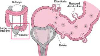 fistula connecting the bladder to the colon picture 7