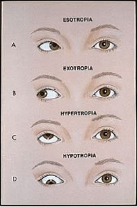 double vision eye muscle surgery picture 10