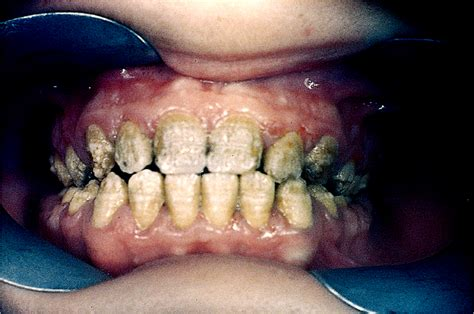 chalky teeth hereditary picture 2