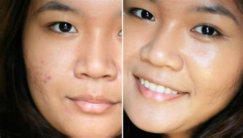 acne cure picture 1