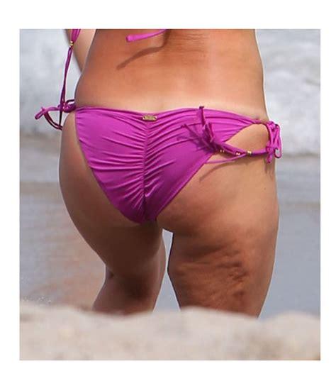 Best cellulite creams picture 7