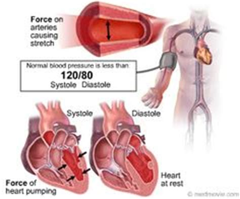 Angina high blood pressure picture 18