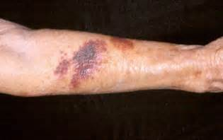appearance of blood vessels under skin picture 1