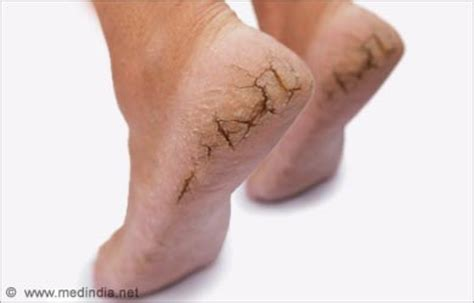 dry skin on feet and hiv picture 8