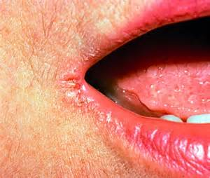 split corners of mouth treatment picture 5
