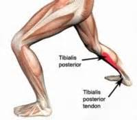 can tarcel tunnel syndrome give u pain in picture 9