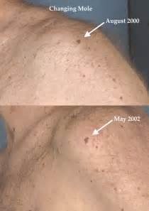 skin exam genitals picture 9