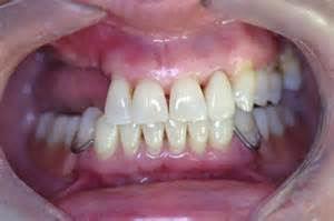 can extra teeth be added to valplast partial picture 3