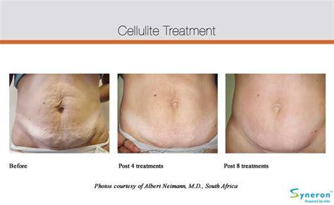 cellulite picture picture 13