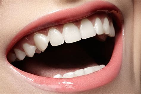 correcting crooked teeth picture 10