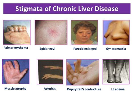 chronic liver disease skin disorder name picture 3