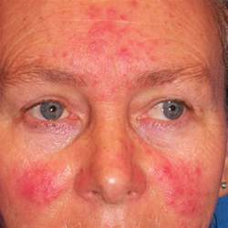 rosacea and mites picture 2