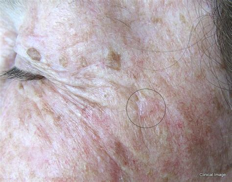 skin cancer views picture 3