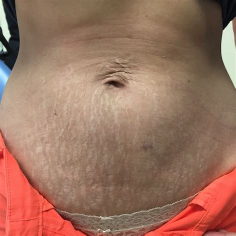 fraxel stretch marks pictures picture 10