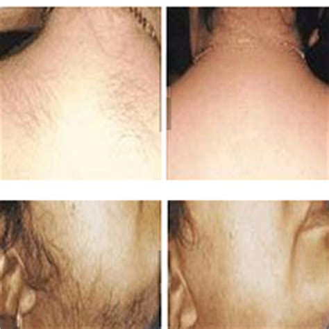 manhattan laser hair removal picture 1