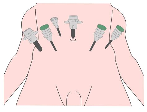 prostate pubic operations picture 19
