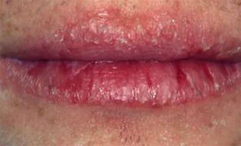 Painful swollen lip picture 5