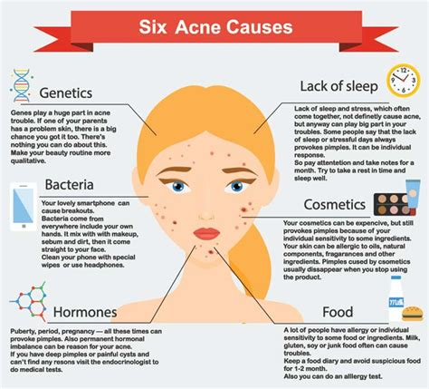 cystic acne causes picture 15