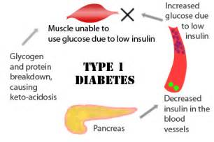 reasons why type 1 diabetics are tired picture 1