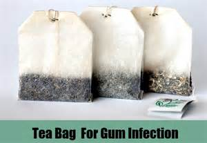 side affects on oral herbal pouches? picture 5