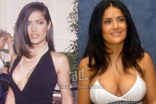 arkansas breast enhancement picture 3