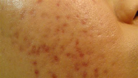 acne scars message board picture 18