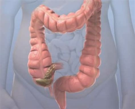 undigested food in bowel movements picture 3