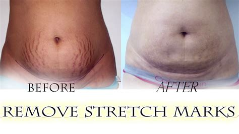 alum block for stretch marks picture 1