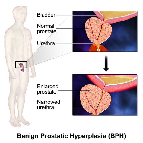 definition of benign prostatic hyperplasia picture 1