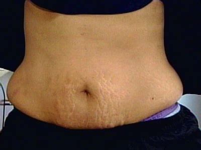 can a tummy tuck get rid of stretch marks picture 11