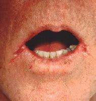 yeast infection around the mouth picture 3