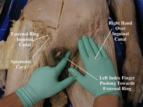 female doctor examine male genitals picture 6