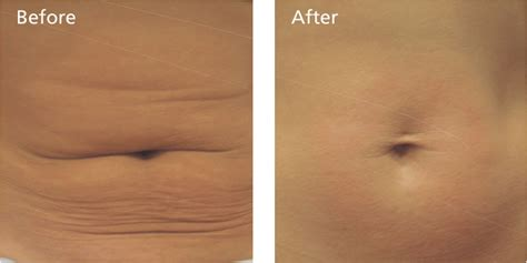 an skin tightening laser new jersey picture 10