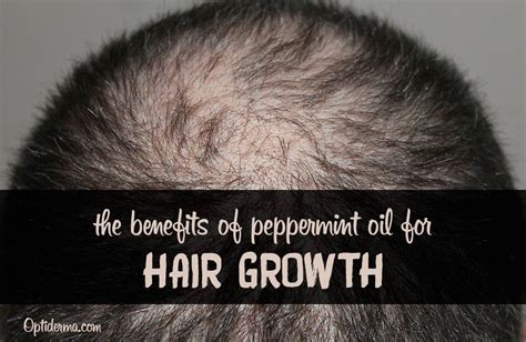 encourages hair growth and weight loss picture 13